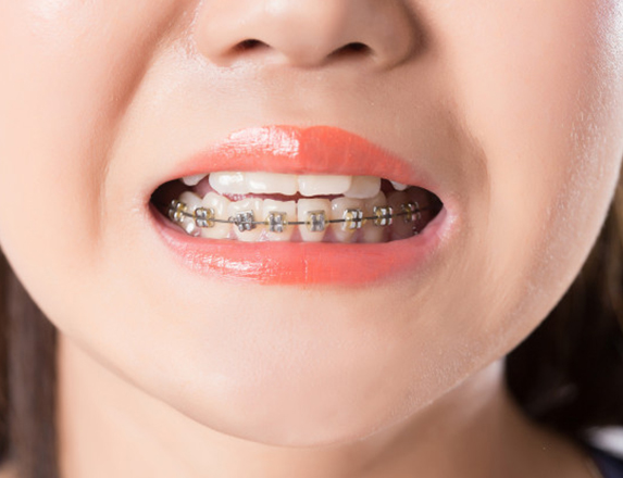 What Are Braces For Children