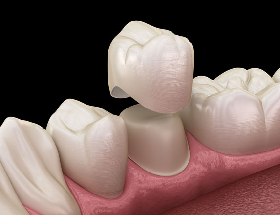 What Are Porcelain Crowns