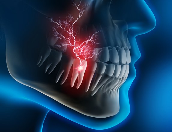 What Are The More Common Dental Emergencies