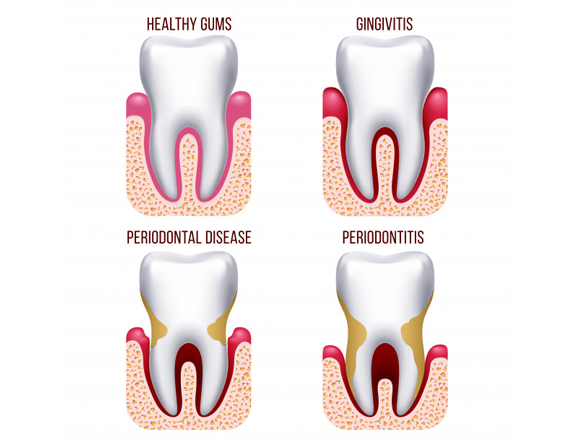 What Is Periodontal Disease 1