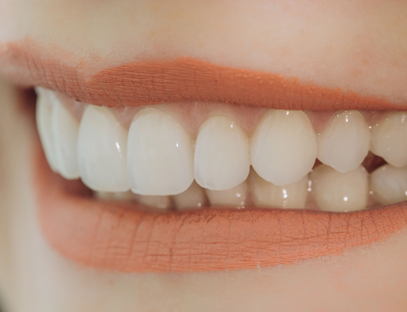 Who Is A Good Candidate For Porcelain Veneers