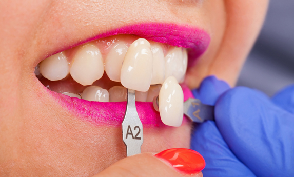 Why Are Porcelain Veneers Needed