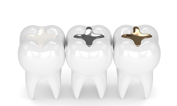 Why Would Composite Fillings Be Needed