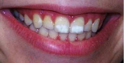 Ballantyne Family Dentistry In Charlotte, Nc White Spots Teeth