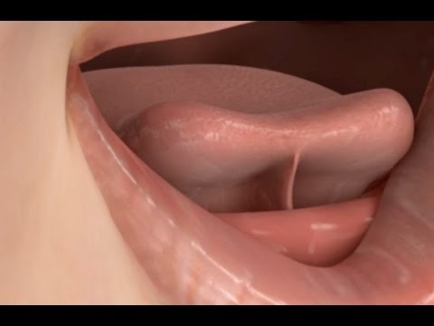Causes And Treatment Of The Short Lingual Frenulum