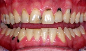 Stained Teeth: Causes and Dental Remedies